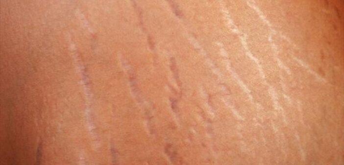 انواع روش های طبیعی و موثر درمان ترک های پوستی