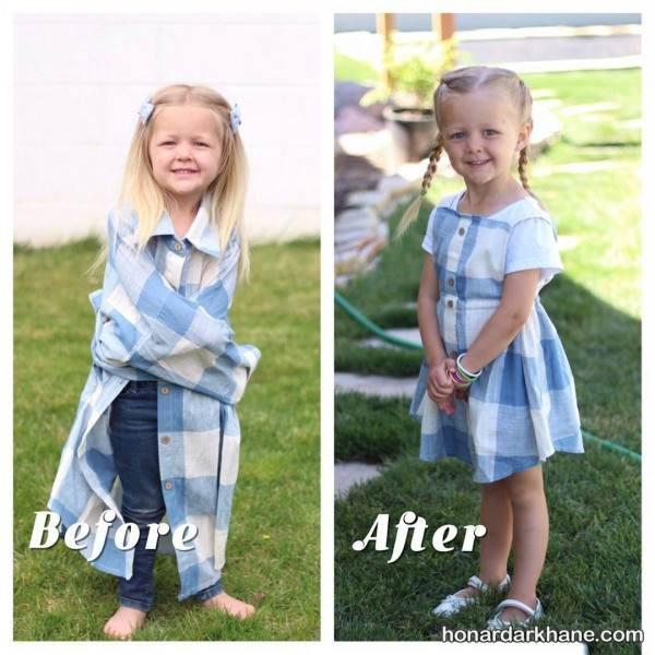دوخت لباس کودک